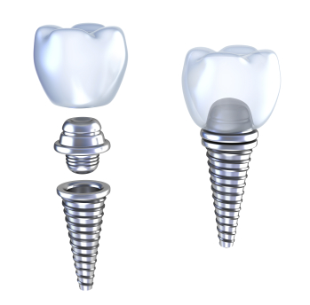 Dental Implants at Fresh Dentistry